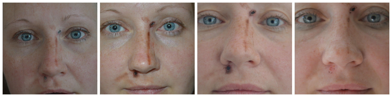 Mole Removal Scar Healing